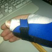 right hand in brace